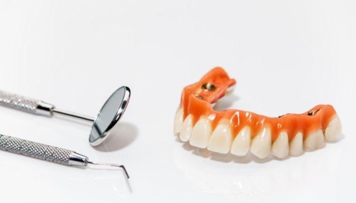 Prothèse sur implants complète avec outils de spécialiste de la santé dentaire