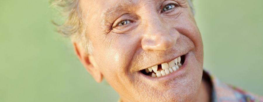 Homme dans la cinquantaine qui sourit, mais dont il manque une dent.